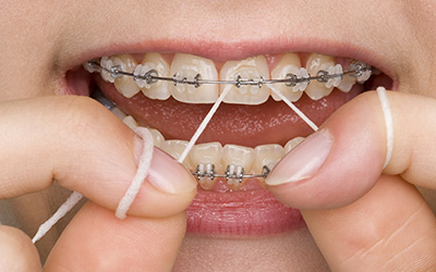 Close up of braces and flossing