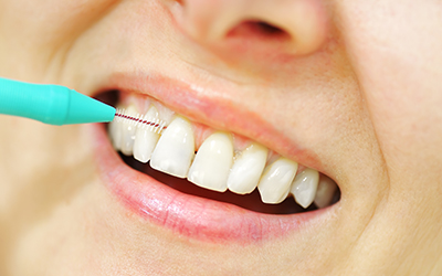 Interdental brush used on woman's teeth